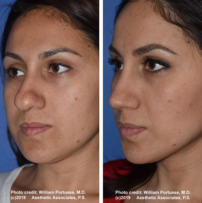 Rhinoplasty Seattle Rhinoplasty Specialist Nose Job Wa
