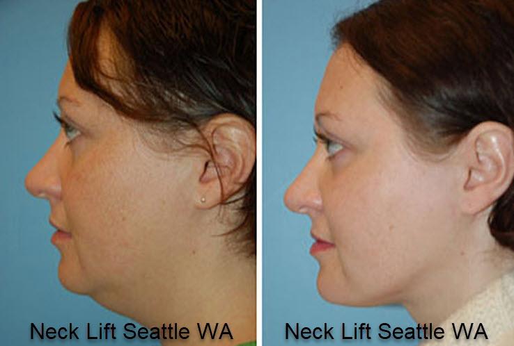 Neck Lift Seattle WA